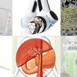 List of top Medical Device Startups