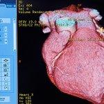Google Grants U Of Sydney $1M To Develop AI To Prevent Heart Attacks