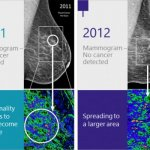 "Mayo Clinic Backs Imago Systems to ""Re-Visualize"" The Mammogram for Breast Cancer Detection – – HIT Consultant"
