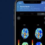 Stroke-Focused Health AI Company Viz.ai Lands $50M
