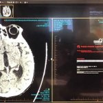 MaxQ AI to Offer Intracranial Hemorrhage (ICH) AI-Powered Apps on Blackford Platform