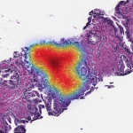 Philips, Paige Partner to Deliver Clinical Grade AI Apps to Pathology Laboratories