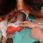 MGH, Current Health Team up to Reduce C-Section Deaths in Uganda