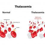 Beta-thalassemia (B-thal): 2020 Pipeline Insights Report