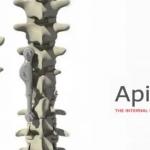 Trendlines Announces Acquisition of Portfolio Company Apifix Ltd. By Orthopediatrics Corp.