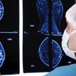 Volpara Acquires Breast Cancer Risk Assessment Company CRA Health, LLC.