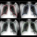 AI vs. Humans: AI Solution Beats Stanford Radiologists In Chest X-ray Diagnostics Competition