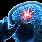 WalletHub Releases Statistics on Stroke In United States