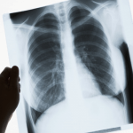 FDA Clears GE Healthcare's AI Platform for X-ray Scans